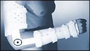 Ортеза за лакътната и киткова стави 06 06 19