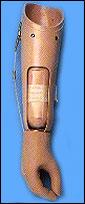 Тягова протеза на предмишницата 09 18 09